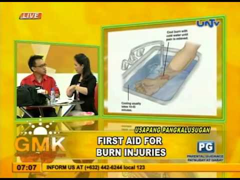 Burn Injuries: First Aid (With Demo)