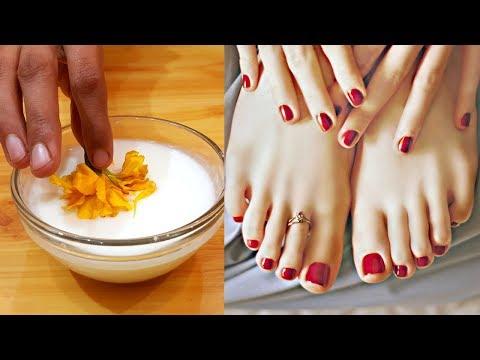 2 Remedies to Lighten Dark Knuckles, Elbows & Knees Treatment - Whiten Your Hands Urdu Hindi