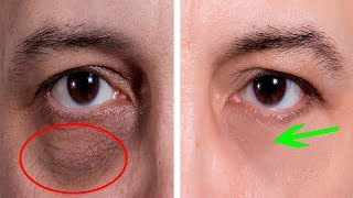How to Get Rid of Bags Under Eyes and Dark Circles