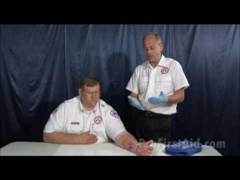 Burns - First Aid