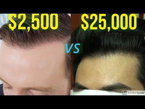 $2,500 HAIR TRANSPLANT VS $25,000 HAIR TRANSPLANT
