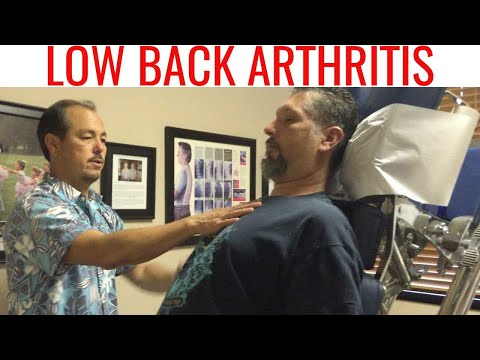 Chiropractor helps Significant ARTHRITIS Low Back Pain w/ NECK adjustment only