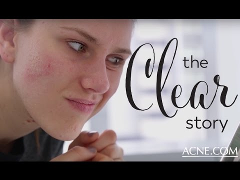 3 Ways To Stop Popping Pimples   The Clear Story