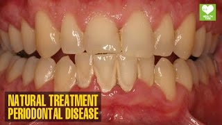 Periodontal Gum Disease How To Cure Naturally Health Tips Education