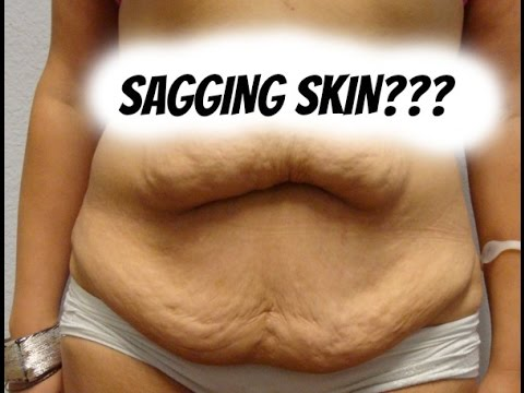 HOW TO GET RID OF SAGGING SKIN #TMITUESDAYS