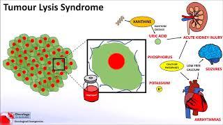 Tumour Lysis Syndrome