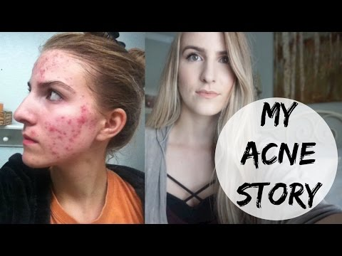 My Acne Story// How I Cleared My Skin and PICTURES