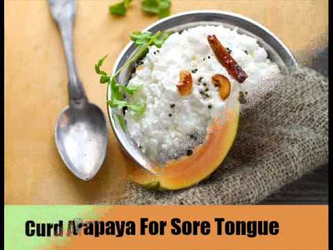 Top 12 Natural Cures For Sore Tongue