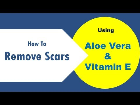 Tips To Use Aloe Vera And Vitamin E For Scars - How To Remove Scars With Aloe Vera