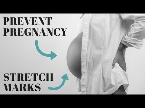 How To Prevent Stretch Marks During Pregnancy: 7 Most Effective Methods!