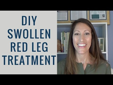 How to Reduce Swollen and Red Legs, Feet and Ankles | Lymphedema from Chronic Venous Insufficiency