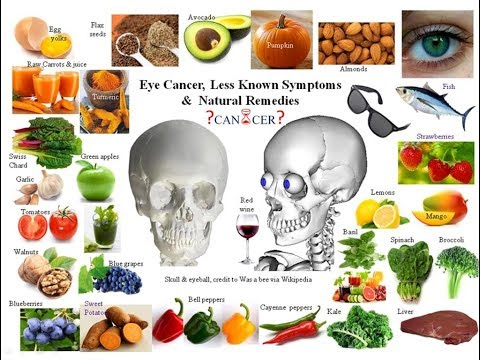 Eye Cancer - Less Known Signs and Natural Cures