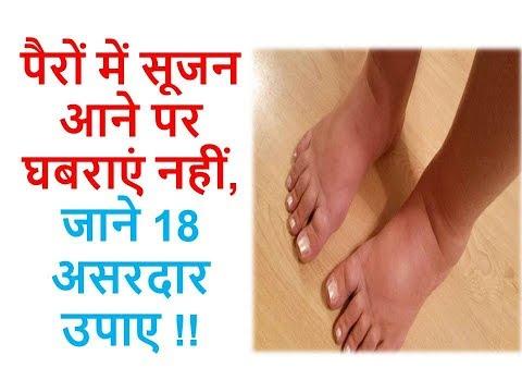 पैरों में सूजन आने पर घबराएं नहीं, जाने 18 असरदार  उपाए !! Ayurveda Home Care
