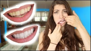 How To Whiten Teeth In 2 Minutes Guaranteed Whiten Teeth
