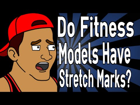 Do Fitness Models Have Stretch Marks?