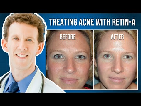 Medical Minute: How does Retin-A improve the Skin?