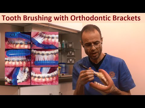 Tooth & Gum Brushing Techniques with Orthodontic Brackets, Braces & Appliances by Dr Mike Mew