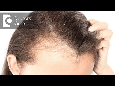 How to treat hairfall in an individual if Minoxidil is not effective? - Dr. Pavithra H N