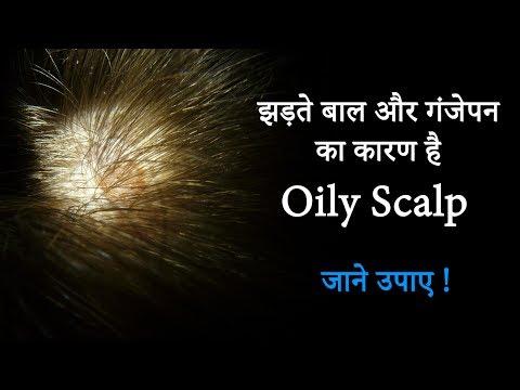 टूटते बाल और गंजेपन का घरेलु उपाए | Oily Scalp Treatment | Oily Scalp Home Remedies | Hair Care