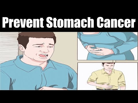 How to Prevent Stomach Cancer | How to Prevent and Know Stomach Cancer Earlier