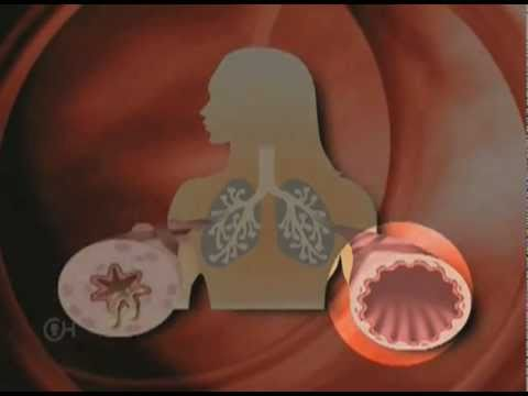 What is Asthma? - The Children's Hospital of Philadelphia (2 of 4)