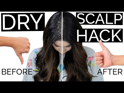 The 1 Dry Flaky Scalp Hair Hack That Actually Works