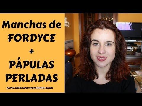 Manchas de Fordyce + Pápulas Perladas, ¿qué son?
