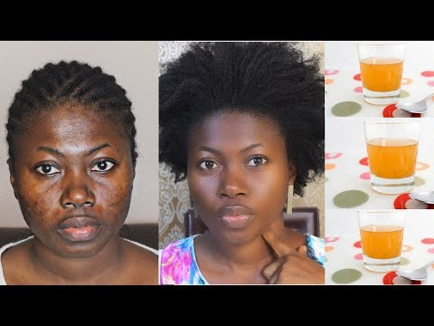 YOU WILL NEVER HAVE SPOTS AGAIN IF YOU APPLY THIS MIXTURE ON YOUR FACE EVERYDAY