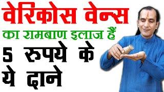 पैरों में सूजन का इलाज Varicose Veins Treatment in Hindi