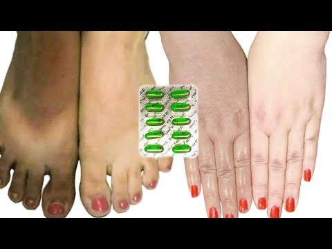 Get Whiter Hands & Legs in 10 Min - Soft, Beautiful & Fairer Hands with Homemade Remedy \ Silky Skin
