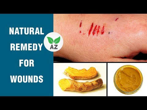Home Remedy to Heal Wounds/Cuts and Bruises Naturally
