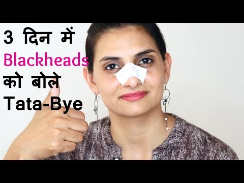 3 दिन में blackheads को बोले Tata-Bye | Remove blackheads from nose at home