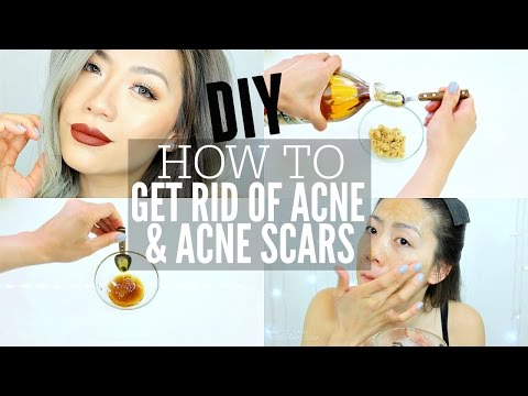 How To Get Rid of Acne & Acne Scars Fast at Home! | DIY Home Remedies Apple Cider Vinegar Mask&Scrub