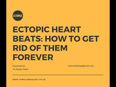 Ectopic heart beats: Getting rid of them for good