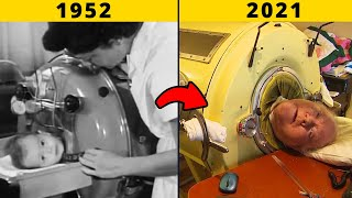 The Man In The Iron Lung    Man Locked In This Machine For Almost 70 Years
