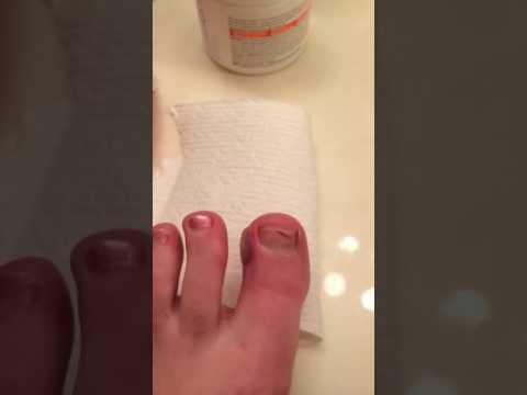 Popped blister from running