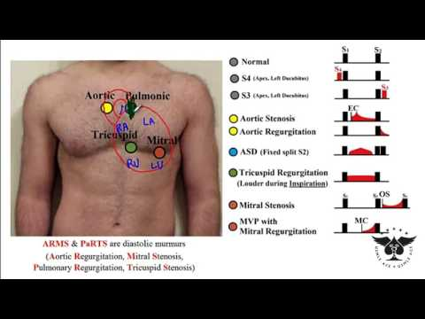 227 - Heart Murmurs, S3, S4, Aortic, Tricuspid, Regurgitation, Stenosis... USMLE STEP 1 ACE