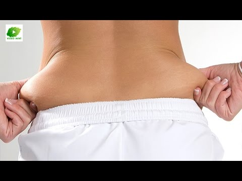 Remedy To Reduce  Back Fat | Best Health Tips | Educational Videos