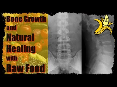Bone Growth and Natural Healing with Raw Food
