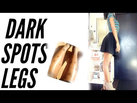 How I Got Rid of Dark Spots on Legs - Journey, Products, & Routine