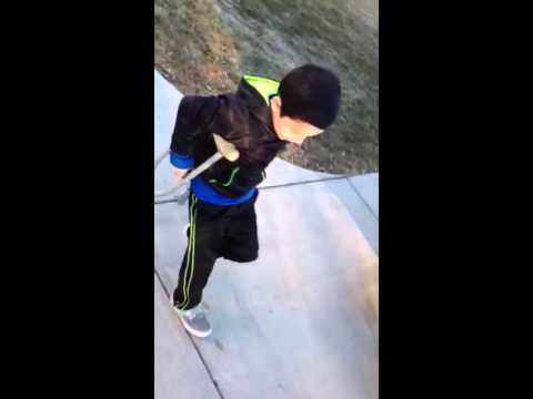 How to go down steps with broken leg