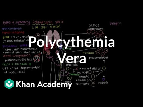 What is polycythemia vera? | Hematologic System Diseases | NCLEX-RN | Khan Academy