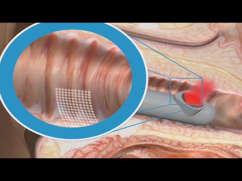 Xxx Mp4 Dispareunia E Incontinencia Urinaria Tratamiento Láser 15110 3gp Sex