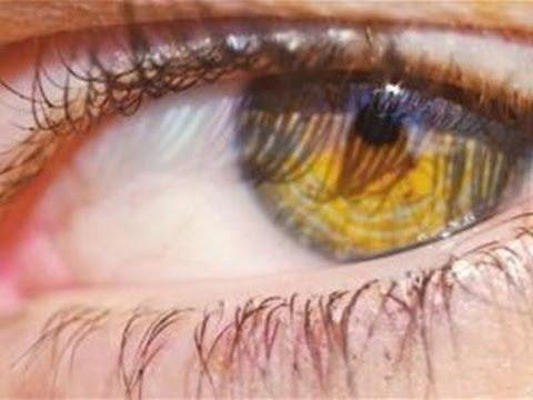 How To Treat An Eye Stye