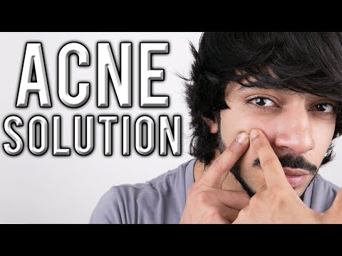THE BEST ACNE TREATMENT | AESTHETICALLY