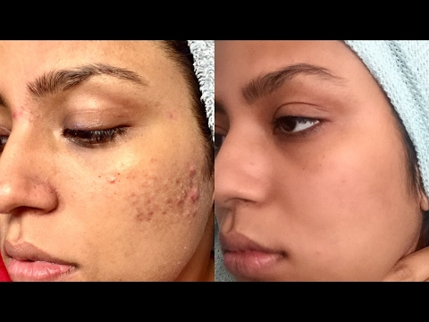 How I Cleared My Acne & Scars Fast & Affordable w/ Real Pix