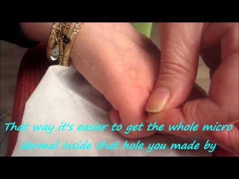 Micro Dermal Anchor