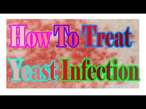 How To Treat Yeast Infection : What Is Yeast Infection : Yeast Infection Symptoms