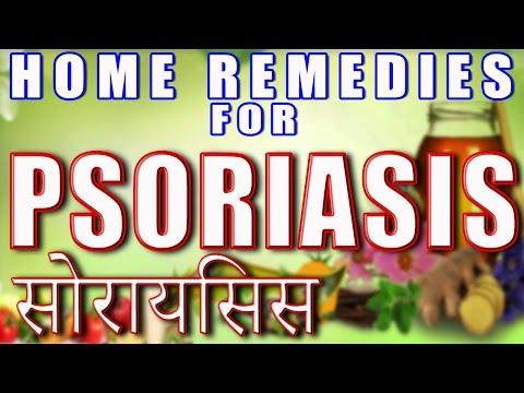 Home Remedies for Psoriasis II सोराइसिस के घरेलु उपचार II