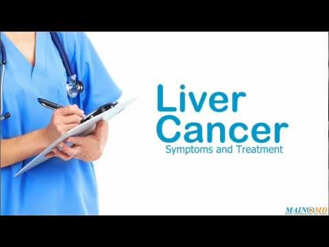 Liver Cancer: Symptoms and Treatment